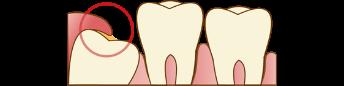 親知らずが歯茎の中に埋没している場合