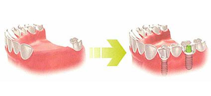 歯を数本失った場合