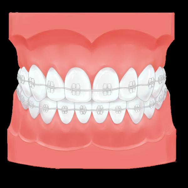 矯正歯科治療とは