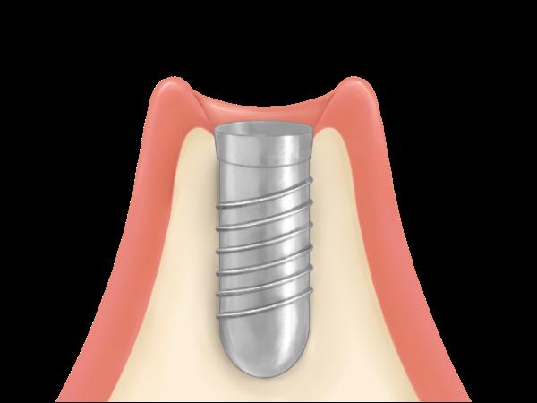 インプラント体の埋入と治療