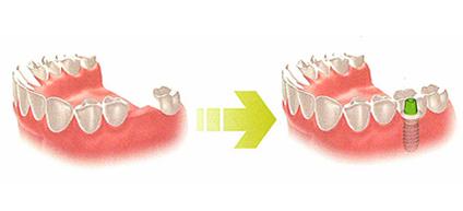 歯を一本失った場合