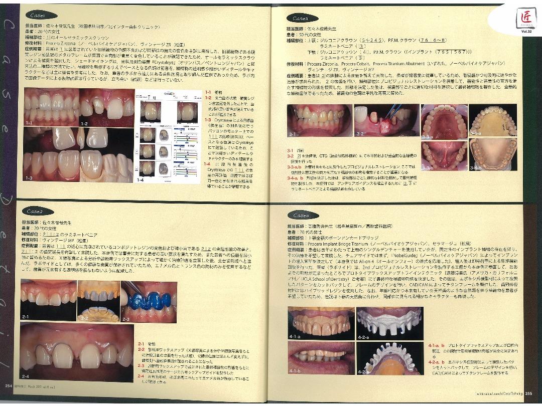 月刊 歯科技工 2013 vol.41 no.3/Labo Communication ―日常臨床技工の実際―/平成25年3月1日発行