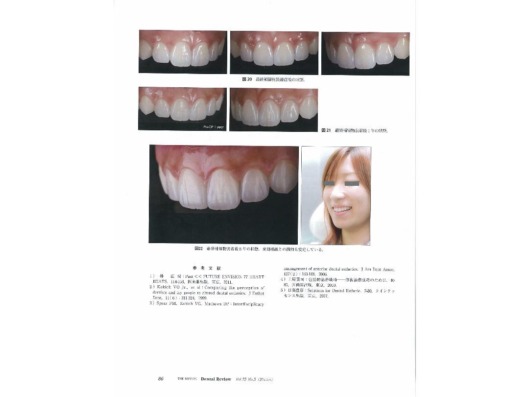 『日本歯科評論(THE NIPPON Dental Review)』2015年5月号/別刷/ページ12