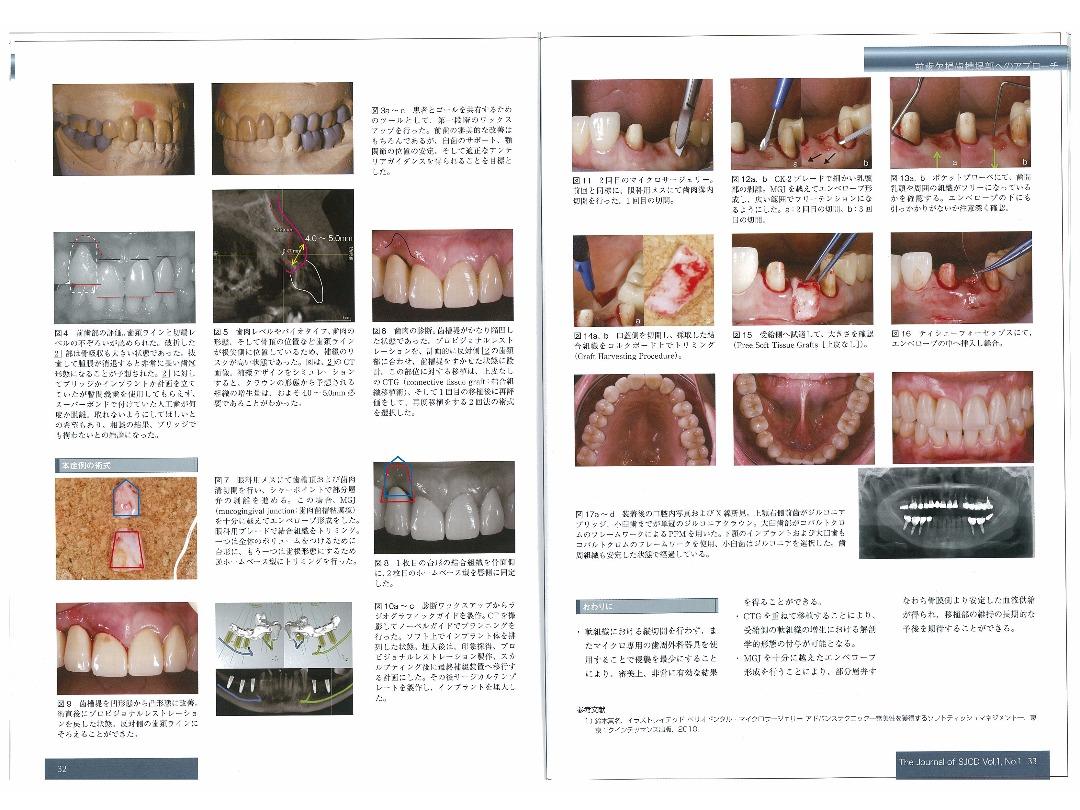 The Journal of SJCD Vol.1・No.1 2013/前歯欠損歯槽堤部へのアプローチ
