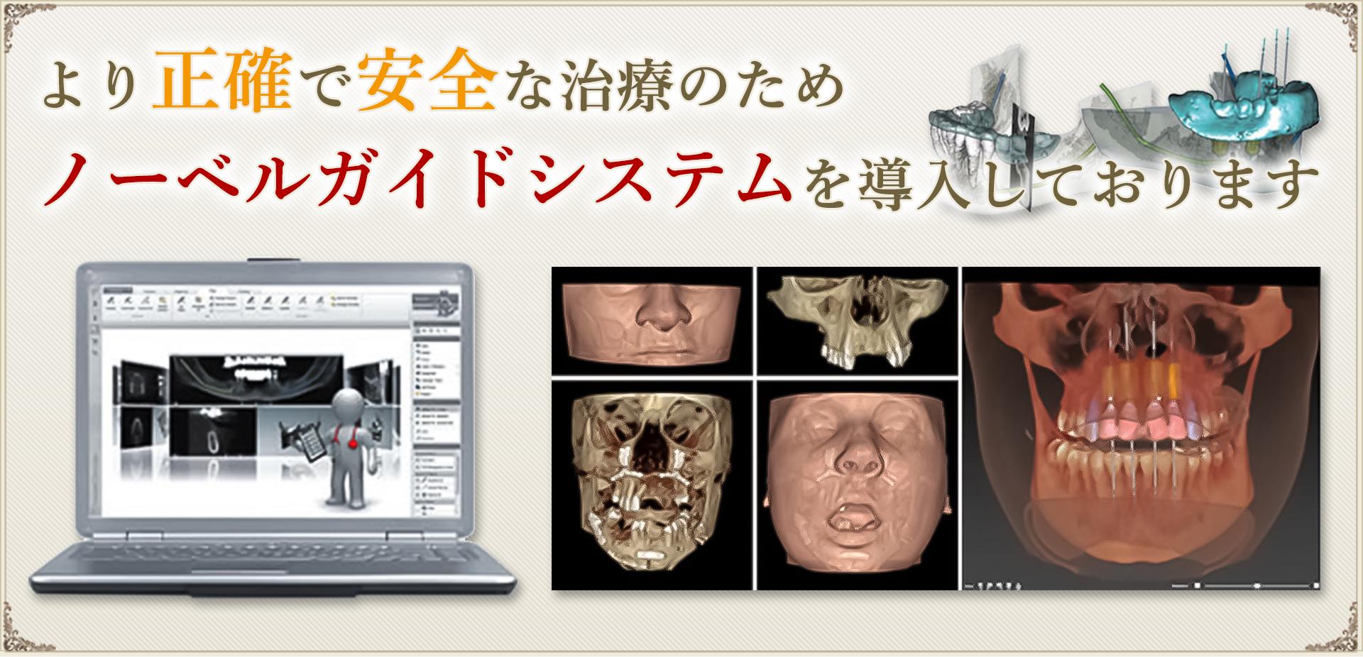 より正確で安全な治療のため、ノーベルガイドシステムを導入しております。
