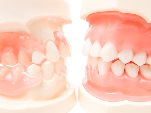 入れ歯の調整も可能です!