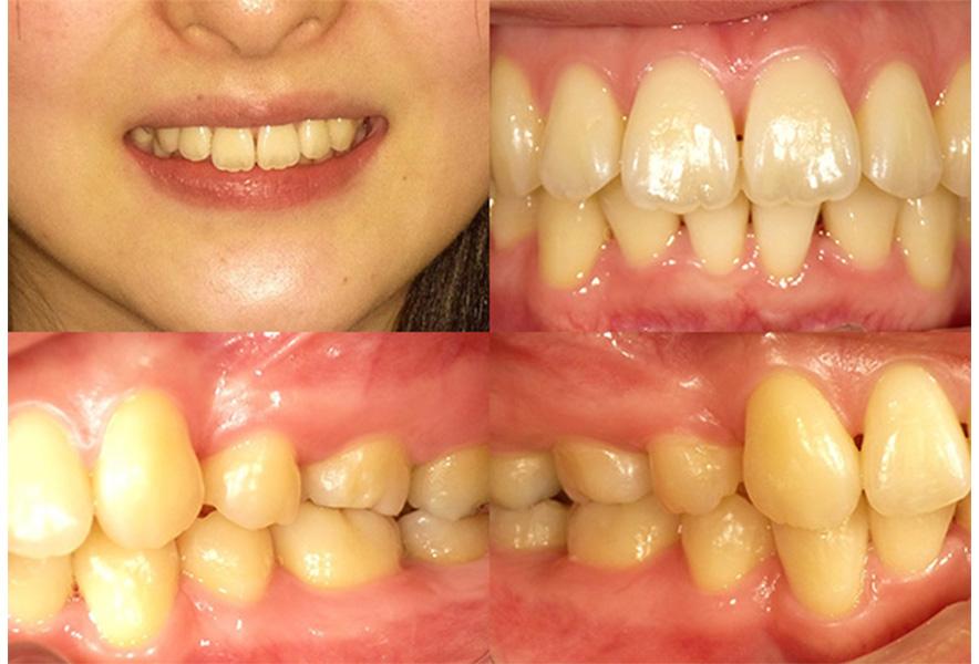 叢生の歯列 症例