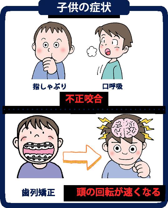 不正咬合 子供の症状