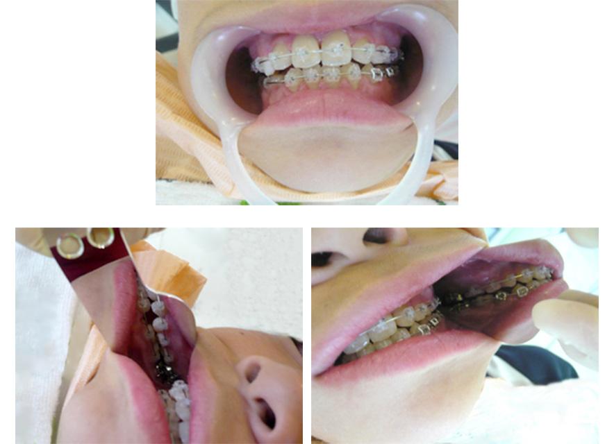下顎前突の症例