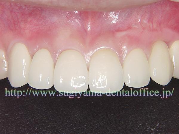 前歯の治療