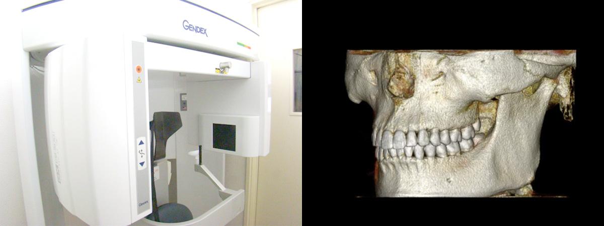 正確な診断を可能にする歯科用CT