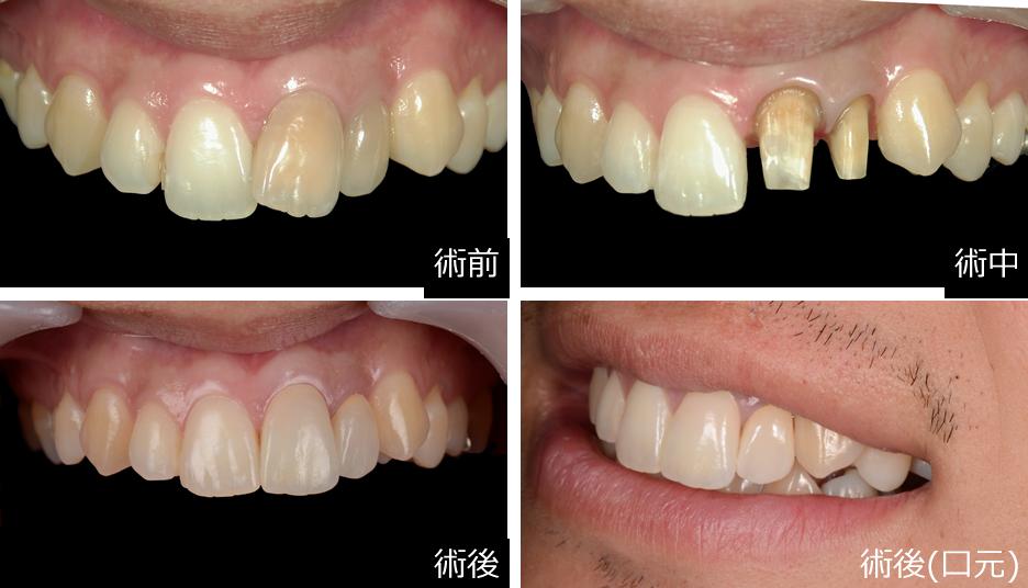 審美歯科症例③