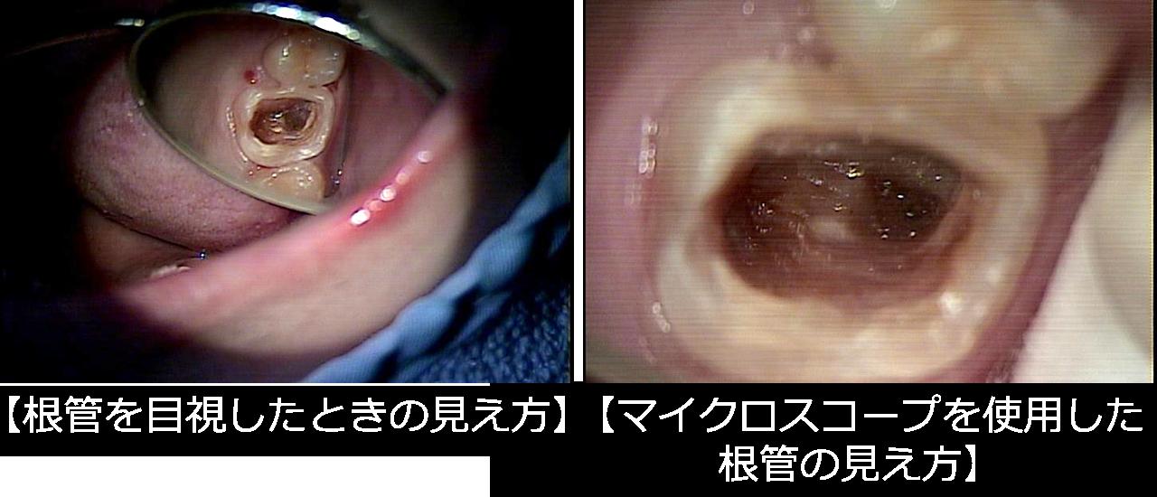 マイクロスコープによる根管の見え方比較