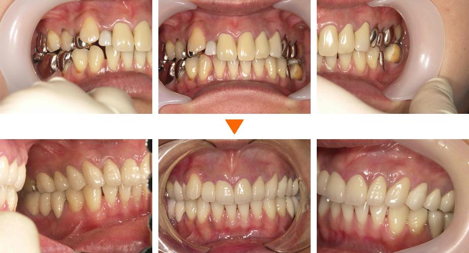 審美歯科症例②