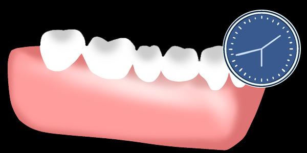 ⑤人口の歯を制作・装着