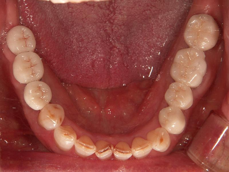 下顎 術後
