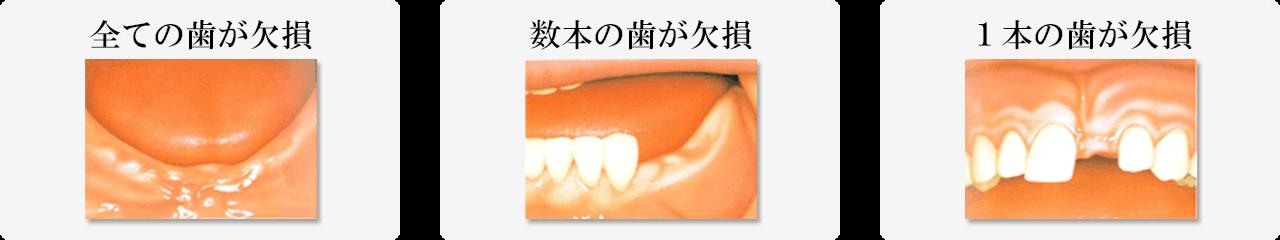 インプラントイメージ