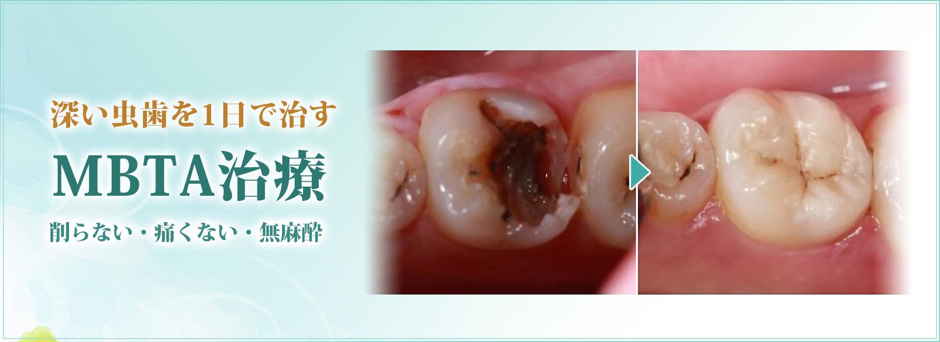 深い虫歯を1日で治すMBTA治療