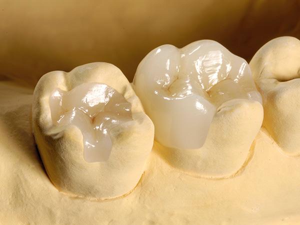 セレック治療 奥歯