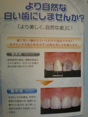 自然に見える歯