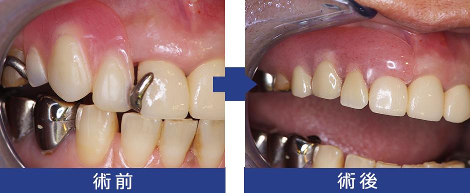 [症例2] ノンスクラブ義歯