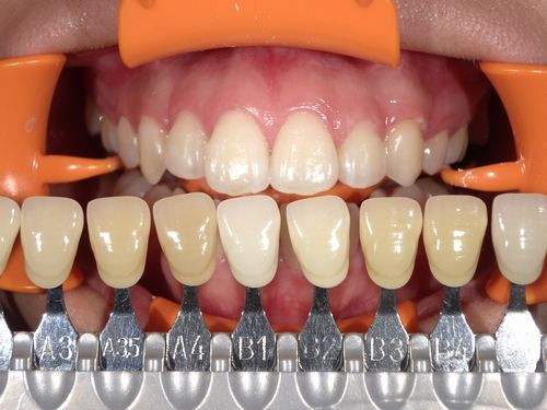 歯のクリーニングとホワイトニング