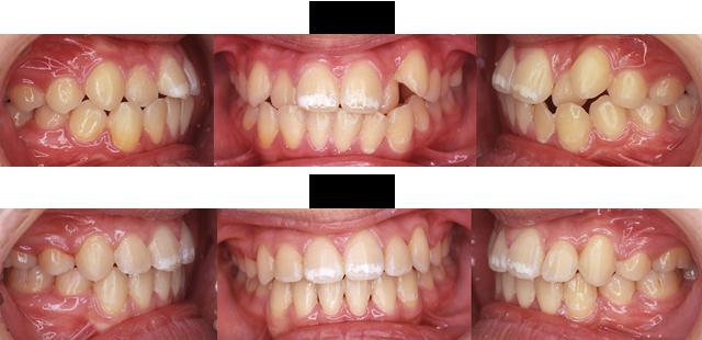 16歳 女子 (前歯の歯みがきが大変なので虫歯になるのが心配なので治療希望)