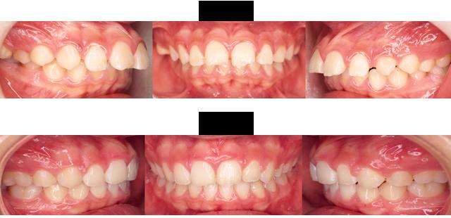 12歳 女子 (奥歯のかみ合わせと前歯がズレているので治療希望)