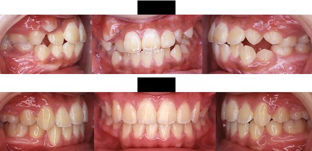 12歳 女子 (右上の犬歯のでるスペースがないので治療希望)