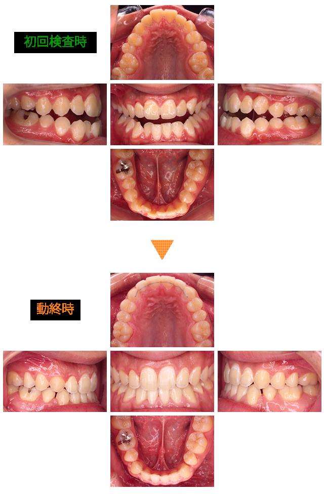矯正治療による口元の変化 症例3