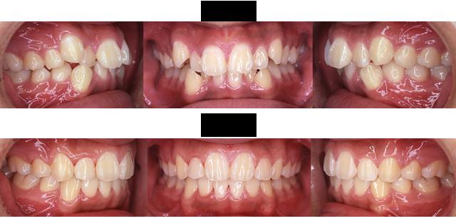 15歳 男子 (前歯の並びが気になるので治療希望)