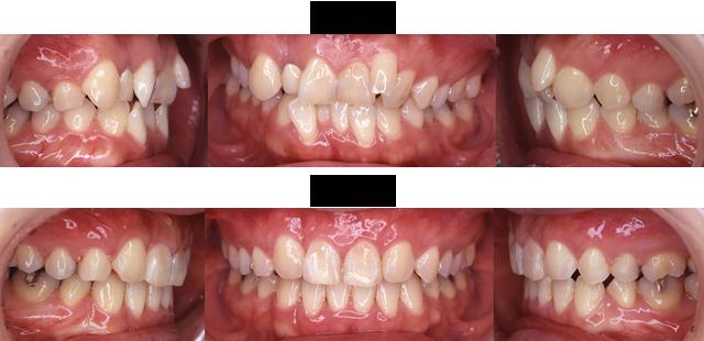 36歳 女子 (右上の差し歯のところと前歯が気になるので治療希望)