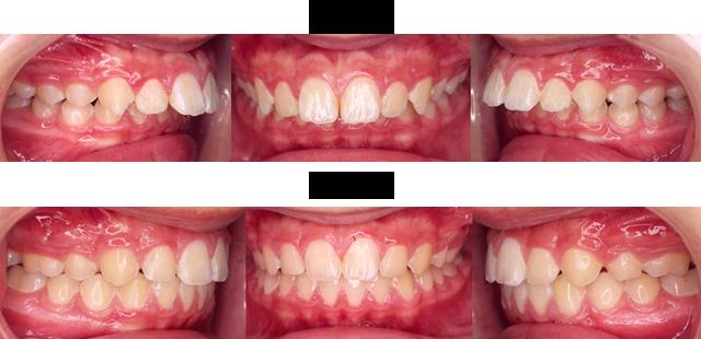 11歳 男子 (前歯の出っ歯を治療したい)