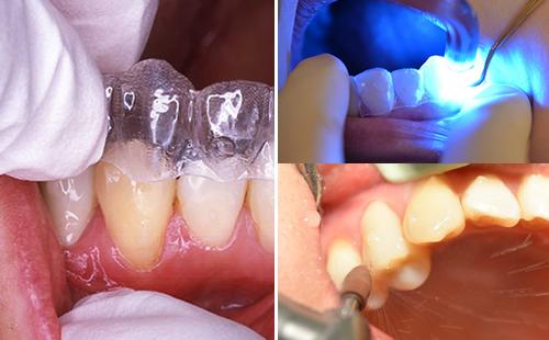 インビザライン専用のアタッチメント・テンプレートの中にレジンを流し込み、歯面に圧接するように接着させます。