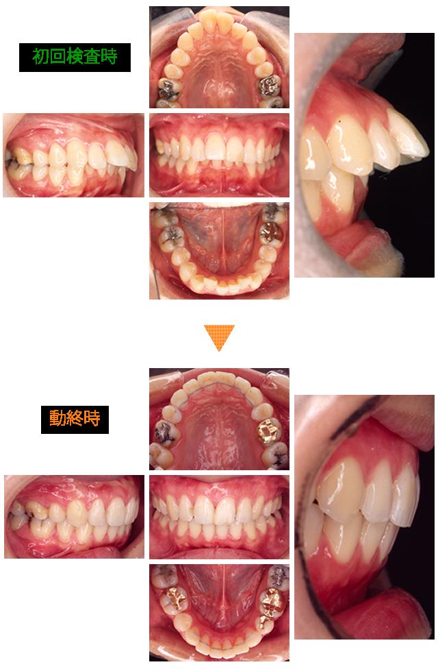 矯正治療による口元の変化 症例1