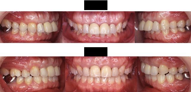 56歳 女子 (出っ歯の差し歯のままでも治療できるか相談されたケース)