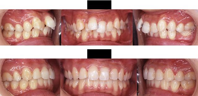 24歳 女子 (前歯の突出が気になるので治療希望)