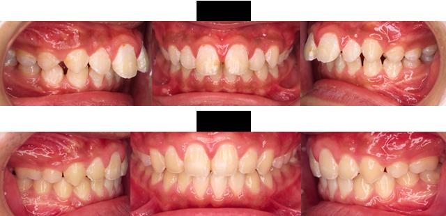 12歳 男子(前歯のすき間と出っ歯がきになるので治療希望)