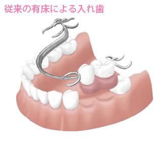 従来の入れ歯3