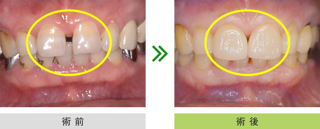 ラミネートベニア症例(前歯2本 ラミネートベニア)