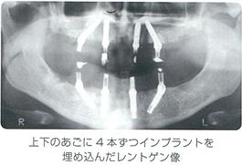 上下のあごにインプラント4本ずつインプラントを埋め込んだレントゲン像