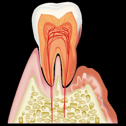 中等度歯周病における歯周外科処置について