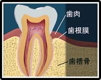 歯周病再生療法とは