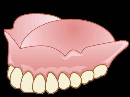 総入れ歯 (総義歯)