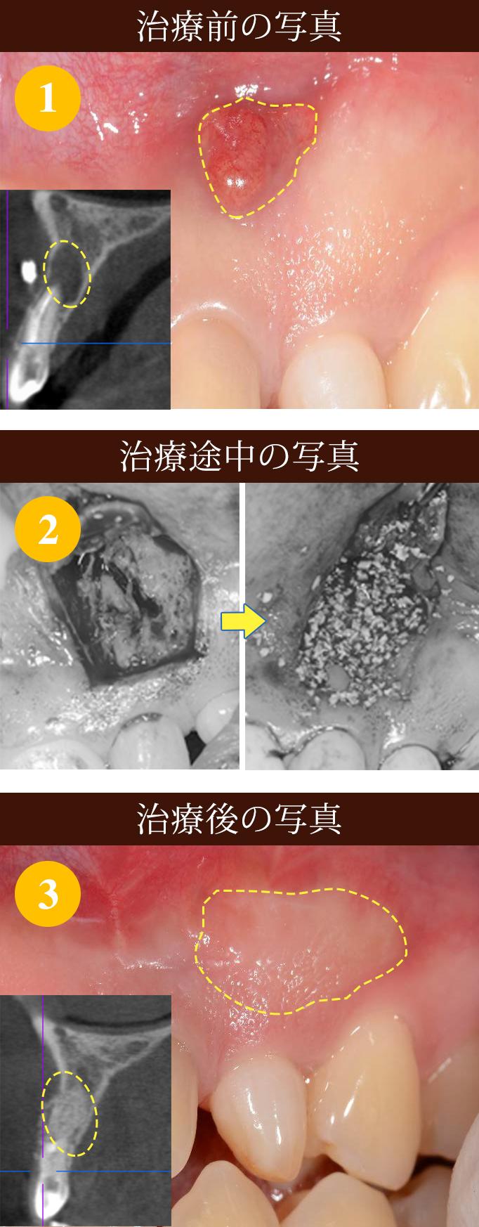 歯の根の治療 難治療 ①写真