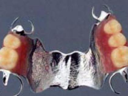 チタンの部分義歯