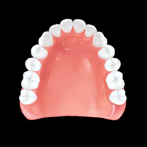 レジン床義歯(入れ歯) – 保険適応 -