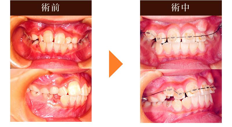 矯正歯科治療例