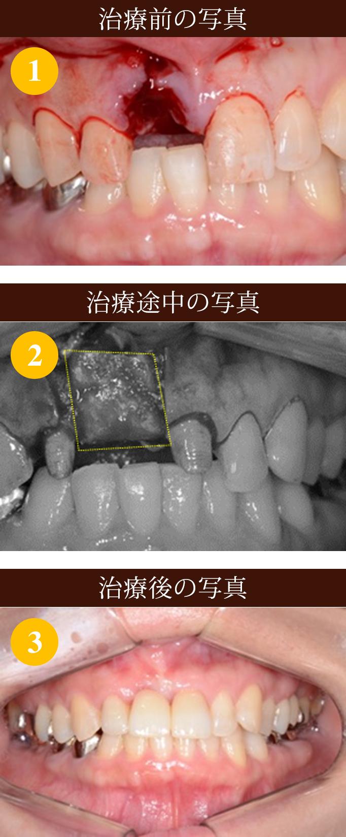外科処置難症例 写真