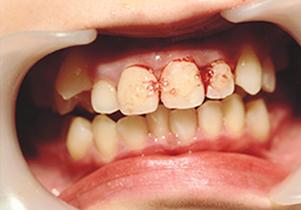 歯牙再植写真暫間固定後